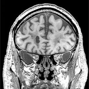 观看 大脑/他大脑的核磁共振图像
